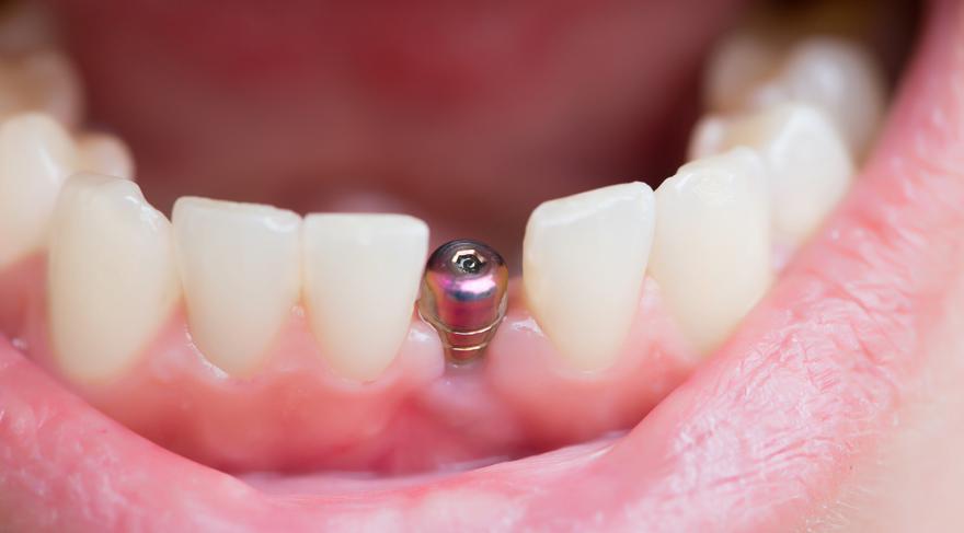 Piyasadaki implantların çoğu sahte
