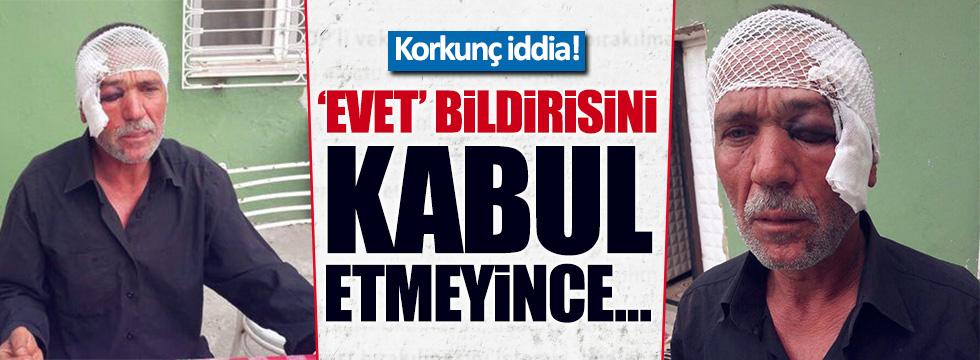 Adana'da 'evet' bildirisi almayan adama dayak iddiası