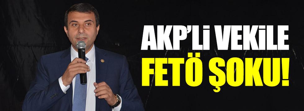 AKP'li vekilin danışmanına FETÖ'den ihraç!