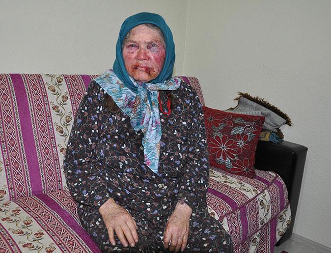 Öldüresiye dövülen 75 yaşındaki kadının torunu gözaltına alındı