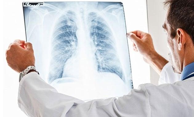 Türkiye'de her gün 65 kişiye akciğer kanseri tanısı