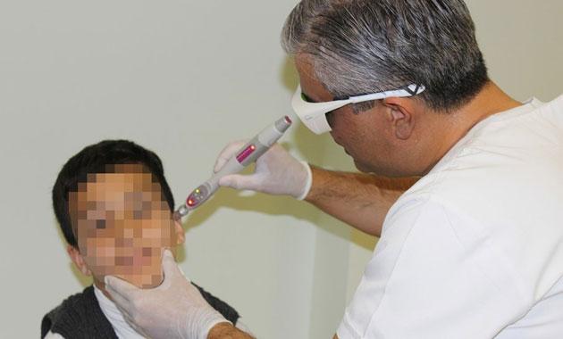 Hiperaktif çocuğa akupuntur tedavisi