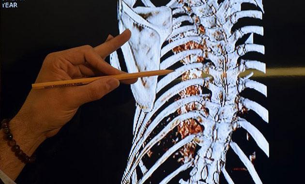 Hastaların yeni umudu 'Sinir dokusu mühendisliği'