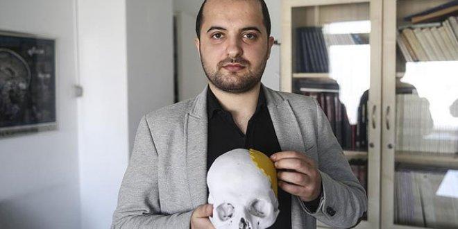 Türkiye'de bir ilk: Parçalanan kafatasına üç boyutlu tedavi