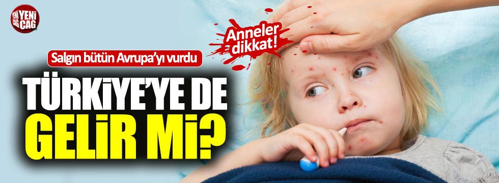 Avrupa'yı kızamık salgını Türkiye'ye gelir mi?
