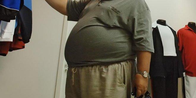"""Dünya nüfusunun üçte biri obez"""