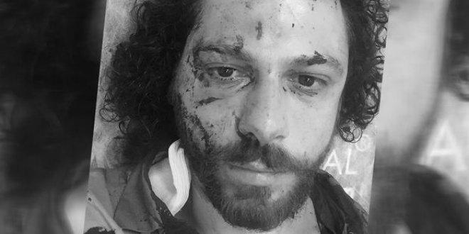 Ünlü oyuncu Kadıköy'de saldırıya uğradı
