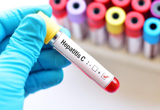 Türkiye'de her 100 kişiden 1'i Hepatit C hastası