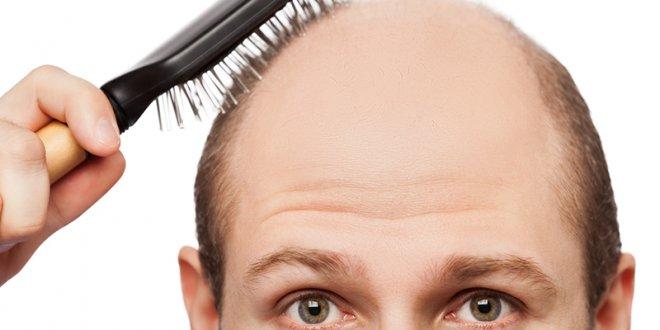 Saç dökülmesine ne sebep olur, nasıl önlenir?