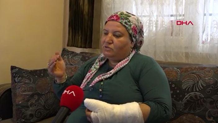 İşitme engelli kadının kolunu kırdılar
