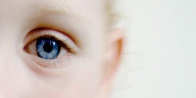 """""""Her 160 çocuktan biri otizm sendromlu"""""""
