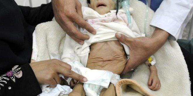 BM'den Yemen'de 'kıtlık riski' uyarısı