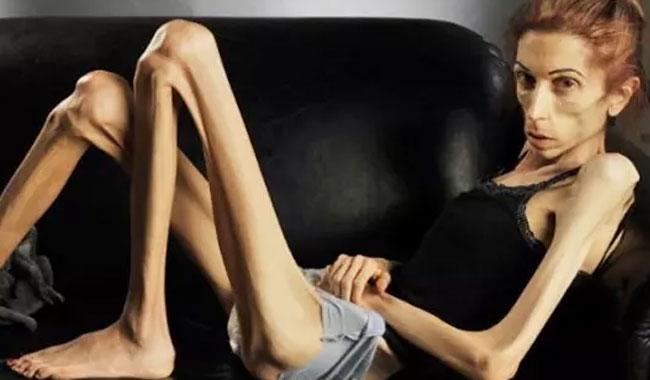 Anoreksiya nedir? Anoreksi hastalığı ne demek?