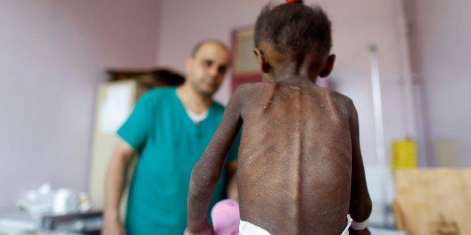Yemen'de 85 bin çocuk açlıktan öldü!