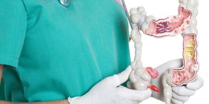 Bağırsak kanseri en çok gençlerde görülüyor