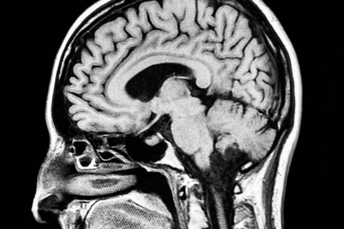 """Bilim insanlarının hedefi beyni """"ayarlamak"""""""