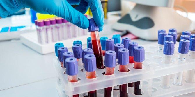 A kan grubu 0 grubuna dönüştürülebilecek!
