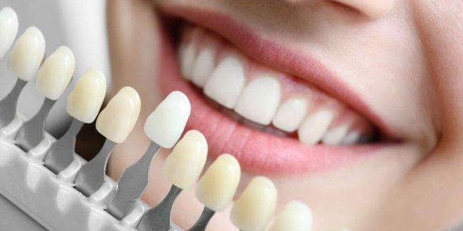 Dişlerdeki renk değişimi hangi sebeplere bağlı?