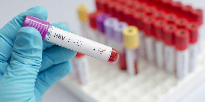 Hepatit virüsü DSàile ilgili görsel sonucu