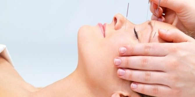 Alzheimer hastalığında akupunktur tedavisi!