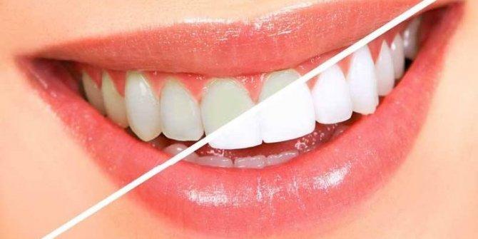 Diş sağlığınız için bu besinlerden uzak durun!