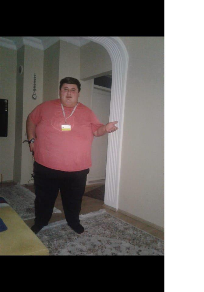 kilosu-nedeniyle-sevdigi-kizla-evlenemeyince-6-ayda-212-kilo-verdi-9024-dhaphoto4-5.jpg